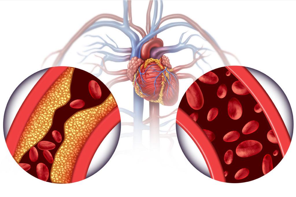 Ipertensione o pressione alta - Prevenzione Ictus